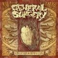 CDGeneral Surgery / Collection Of Depravation