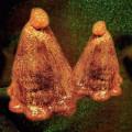 LP / Black To Comm / Oocyte Oil & Stolen Androgens / Vinyl